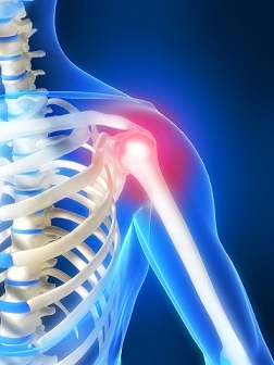 pain-shoulder-11042_0
