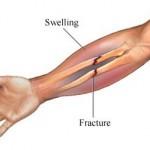 شکستگی استخوان های ساعد