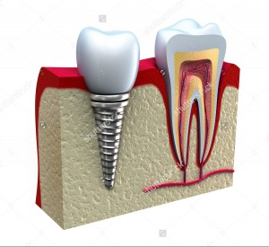 stock-photo-anatomy-of-healthy-teeth-and-dental-implant-in-jaw-bone-100424281