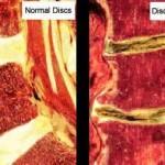 دیسک کمر, در در ناحیه کمر, درمان دیسک کمر